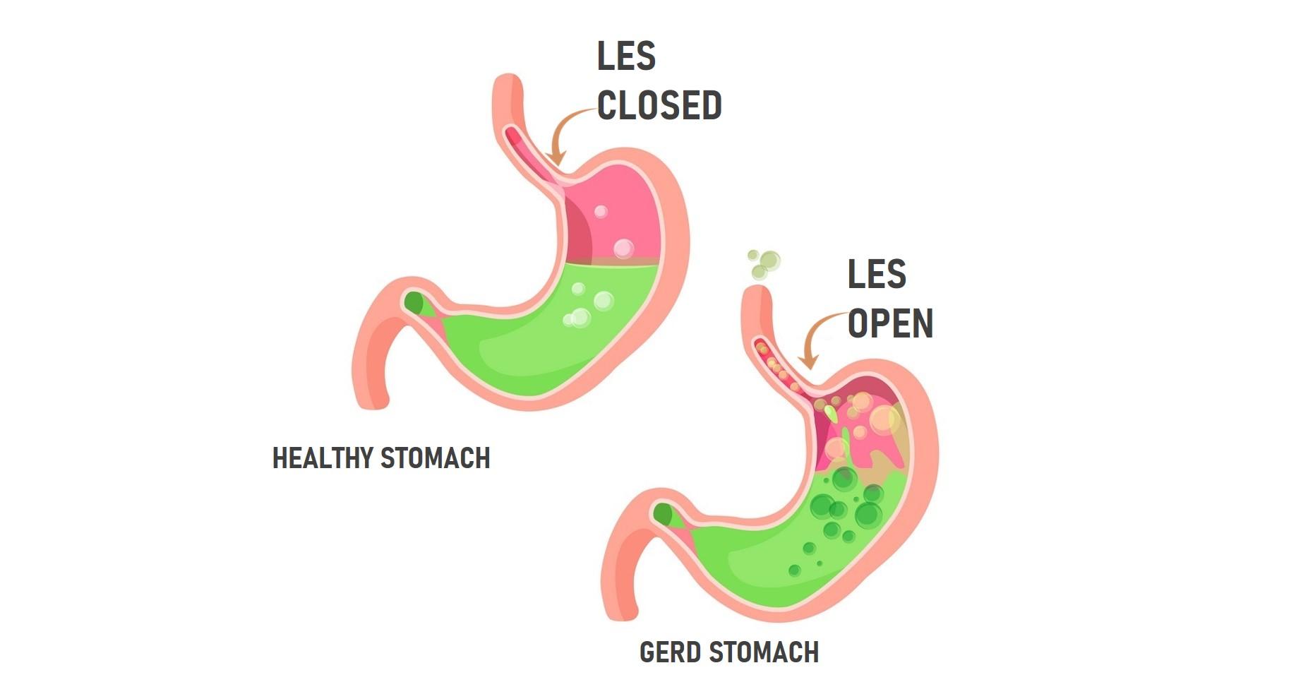 Image result for les gerd